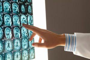 Attorney for a brain injury in Dalton